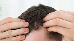 Caduta dei capelli: ecco tutti i rimedi